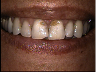before-porcelain-veneers-2